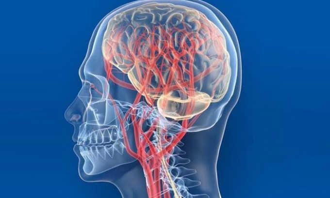 Список относительных противопоказаний включает острое нарушение мозгового кровообращения