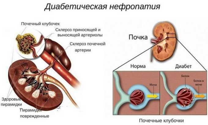 Лекарственное средство показано при диабетической нефропатии