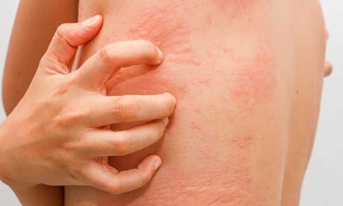 Аллергические реакции могут проявиться в качестве побочных эффектов от приема препарата Амикацин