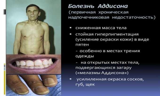 Препарат не рекомендован к применению при болезни Аддисона