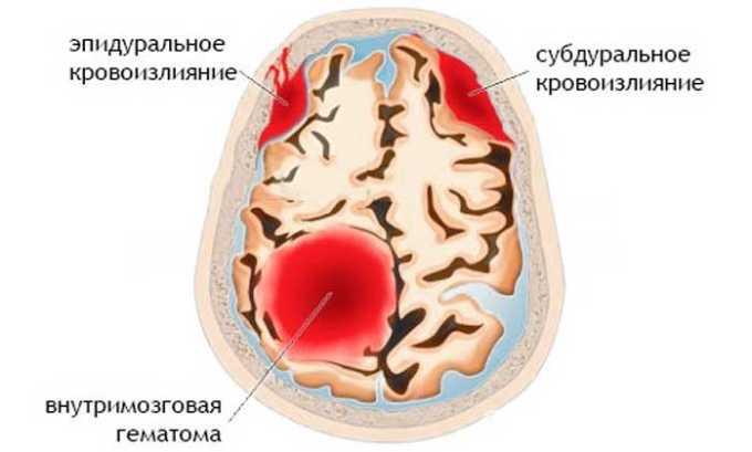 Противопоказанием к приему Ибупрофен 400 считается внутричерепные кровоизлияния