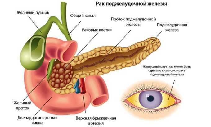 Лечение средством будет обоснованным при выявлении у человека рака поджелудочной железы