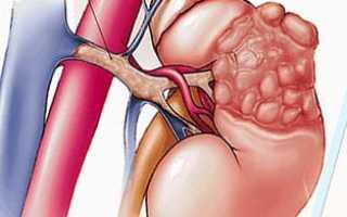 Гемангиома почки — лечение и прогноз