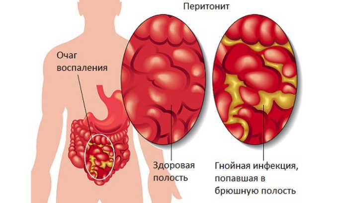 При перитоните можно лечиться Цефаксоном