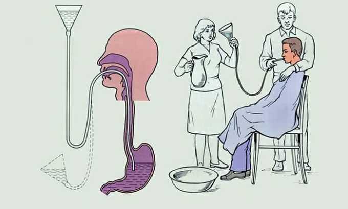 Помощь при передозировке включает в себя промывание желудка