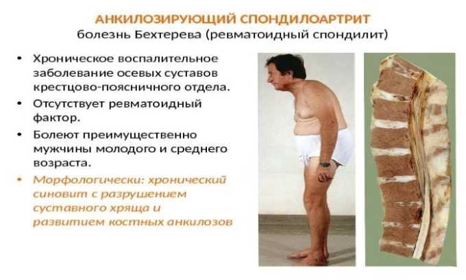 Для снятия боли при болезни Бехтерева назначается Кетанов