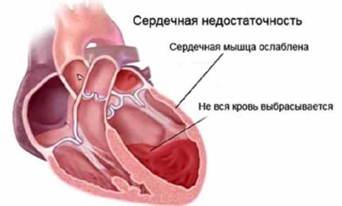 Препарата противопоказан при сердечной недостаточность