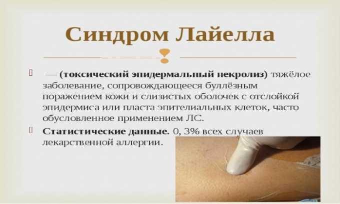 Гормон необходим для терапии токсического некролиза эпидермиса