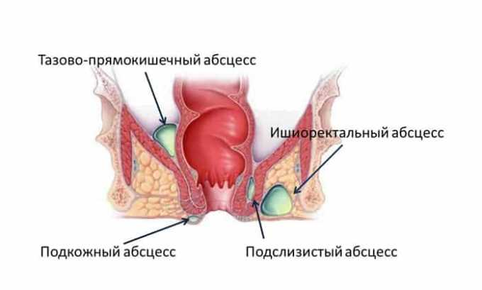 Также лекарство показано при развитии абсцесса
