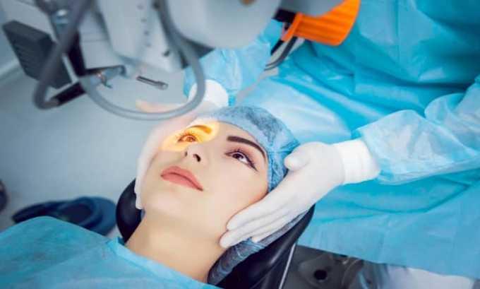 Препарат используется для лечения осложнений, возникающих после лазерной коррекции зрения и других хирургических вмешательств