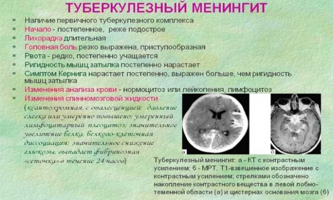 Препарат используют при туберкулезном менингите