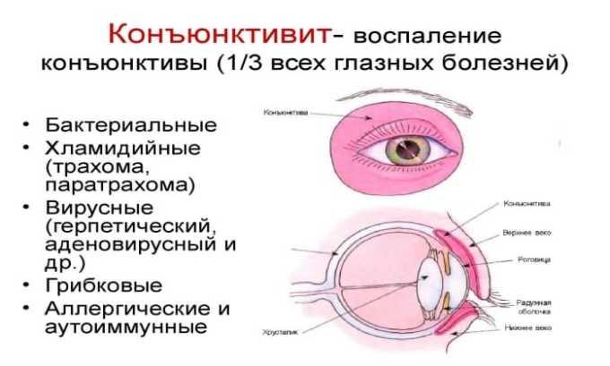 Препарат используется для лечения воспаления конъюнктивы