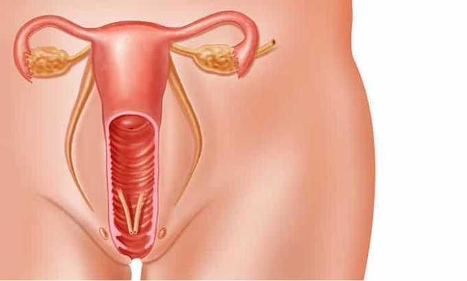 Заболевания женских половых органов лечатся препаратом Офаксин