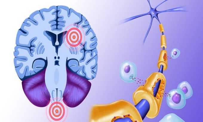 При органических поражениях центральной нервной системы назначают курсовой прием Заноцина