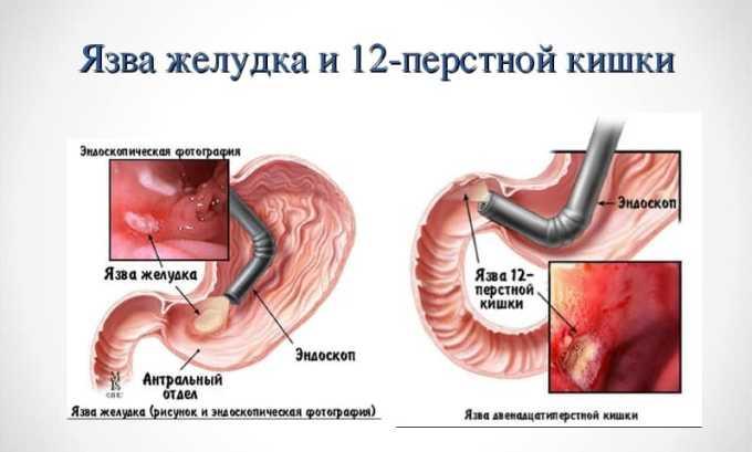 Немисулид противопоказан при язвенной болезни желудка и двенадцатиперстной кишки