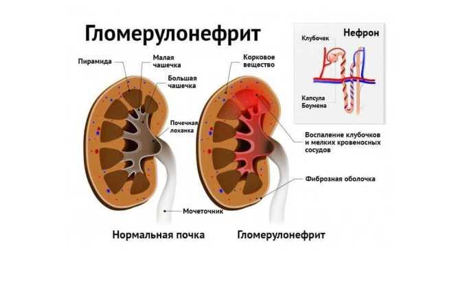 Лазикс противопоказан при такой патологии как гломерулонефрит в острой стадии