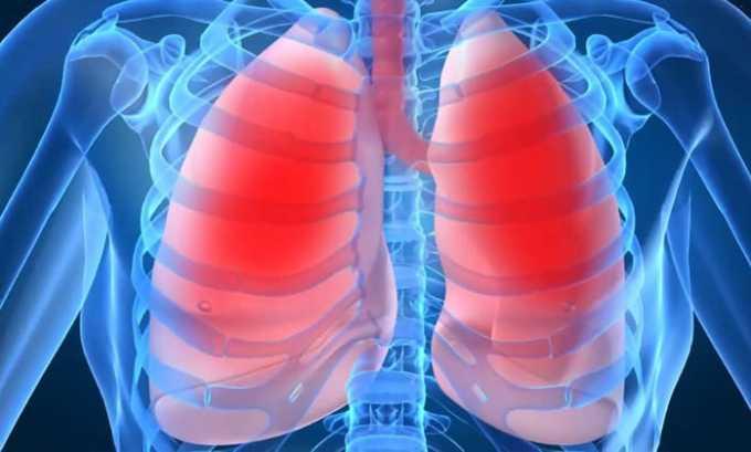 Болезни органов дыхания являются показанием к применению лекарства