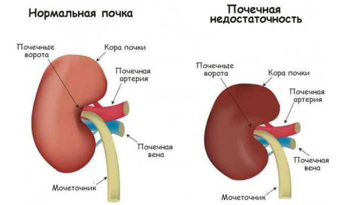 При хронической почечной недостаточности суточная доза препарата не должна превышать 20 мг в день