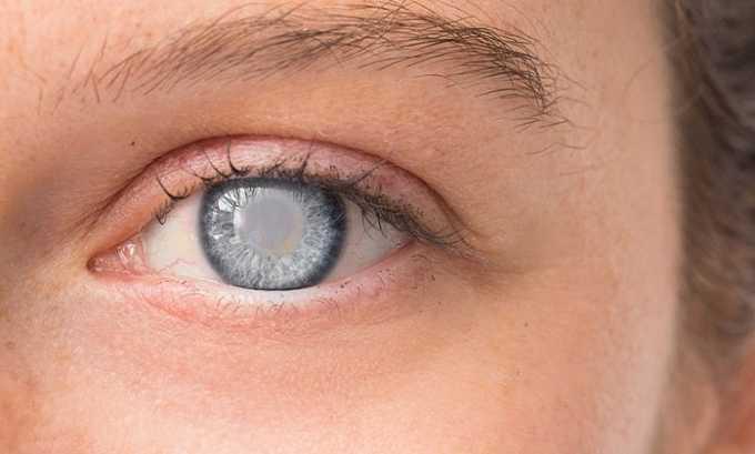 Абсолютным противопоказанием для приема препарата считается глаукома