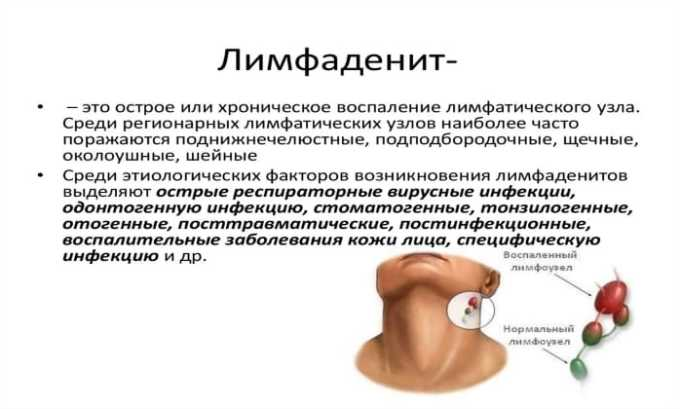 Антибиотик назначается при лимфадените