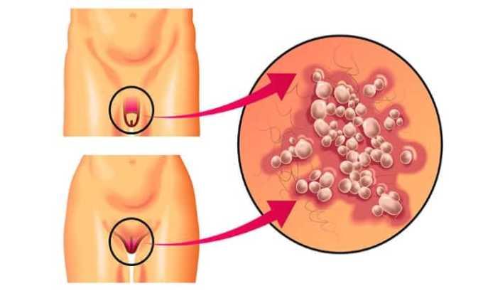 Лекарство используют для терапии герпетической инфекции урогенитальной формы у взрослых