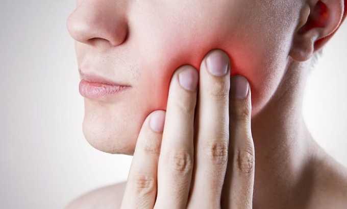 Острые зубные болит помогает снять Диклофенак