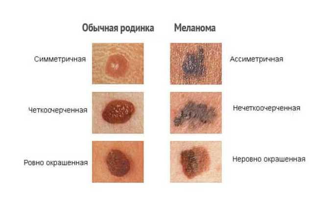 Лекарство противопоказано при злокачественных новообразований на кожном покрове