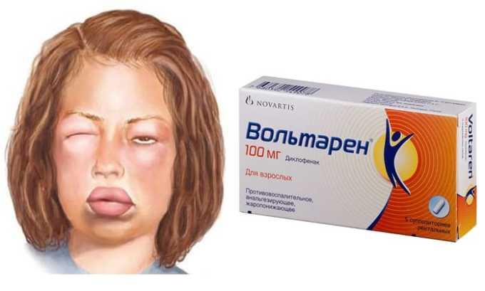 Во время прима препарата могут быть негативные признаки поражения выделительной системы (отечность лица и конечностей)