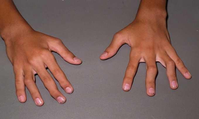При ревматоидном артрите инъекция Дексаметазона и Анальгина может вводиться в организм пациента подкожно или внутримышечно
