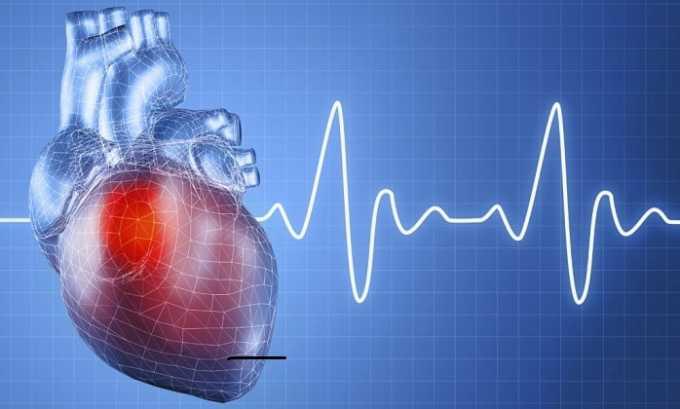 Заболевания сердца - противопоказание к применению смеси из Дискамезитона и анальгина