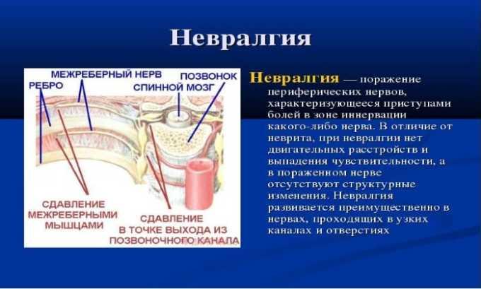 Препарат назначают при невралгии