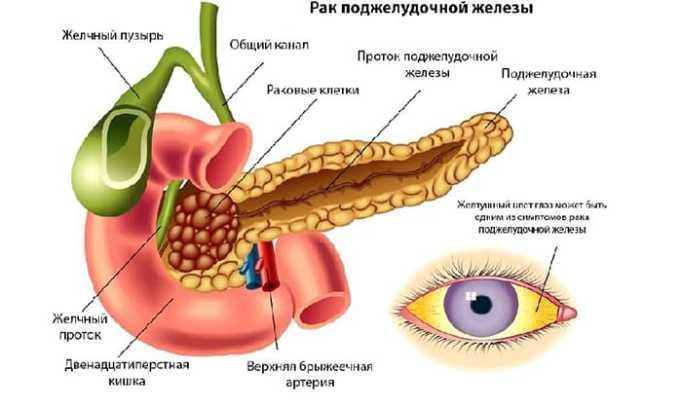 Также лекарство применяют при раке поджелудочной железы