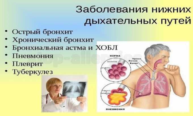 Антибиотик назначается для терапии заболеваний нижних дыхательных путей
