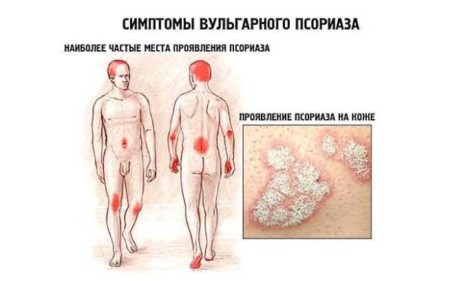 Лекарство назначают при псориазе