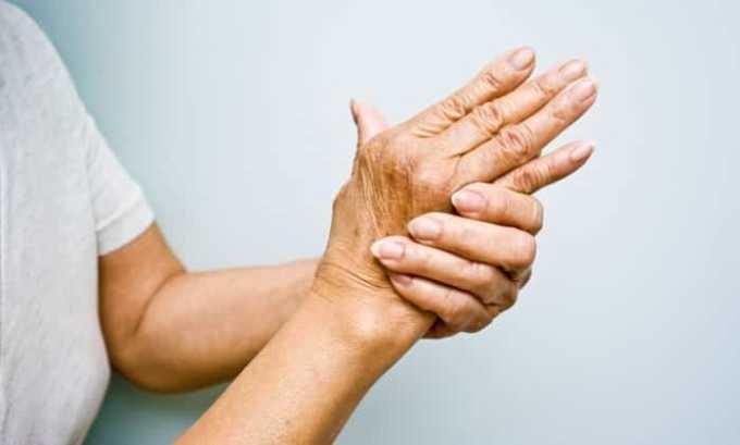 Врачи советуют применять Диклофенак Акос при артрите