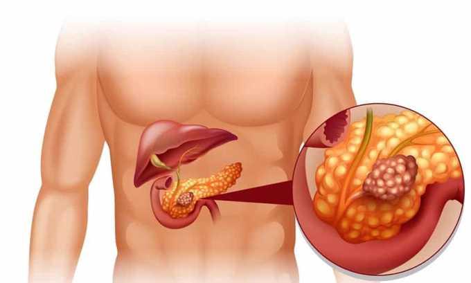 Запрещено принимать Фуросемид 40 при воспалении поджелудочной железы