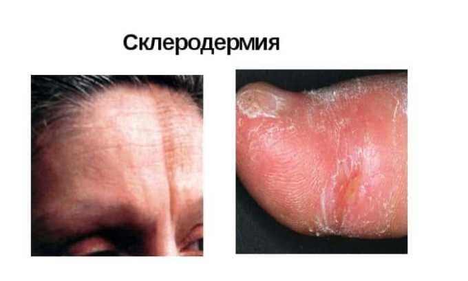 Противовоспалительное средство эффективно при склеродермии