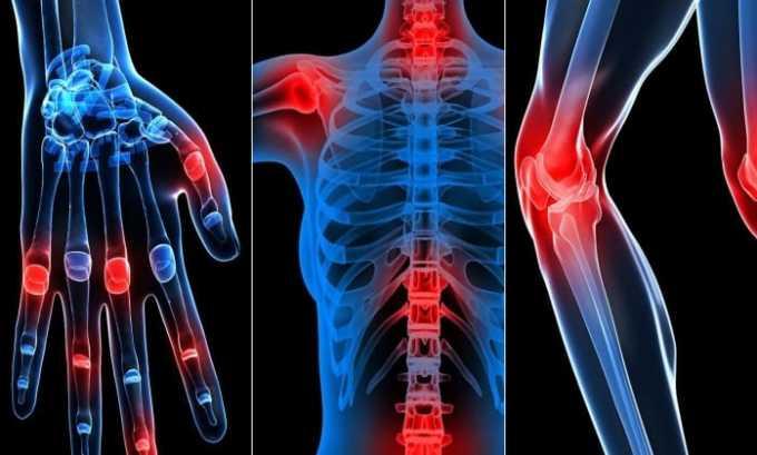 Ибупрофен назначают при патологиях сустав
