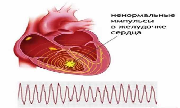 Применение Лидокаина показано в качестве профилактики желудочковой аритмии