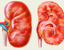 Карбункул почки — причины, симптомы, лечение