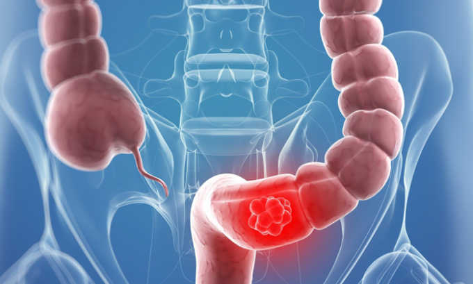 Воспалительные процессы в кишечнике являются противопоказанием