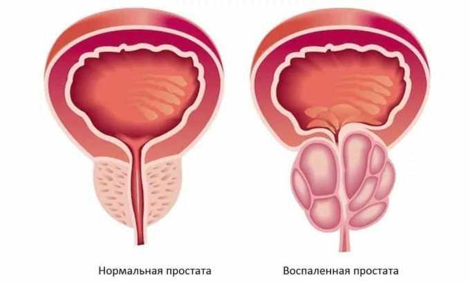 Причиной простатита могут стать и злокачественные опухоли в уретре, простате