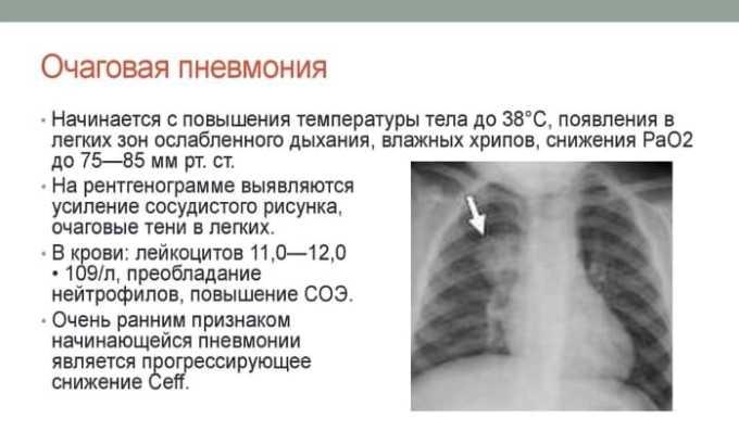Применение Бензилпенициллина назначается при очаговой пневмонии