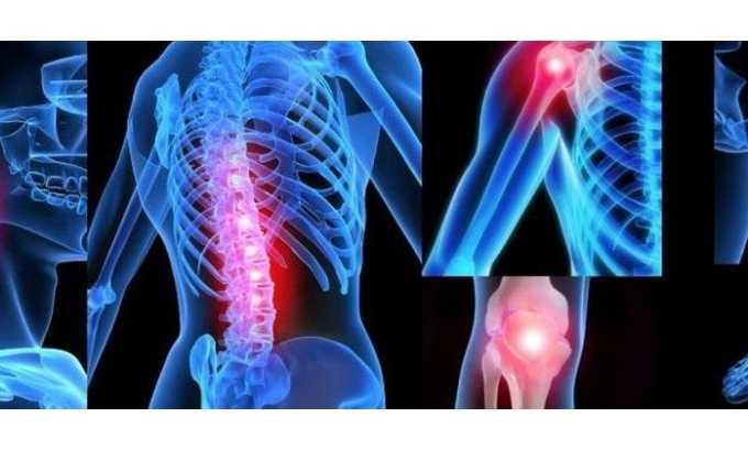 Показания к применению новокаина - заболевания суставов