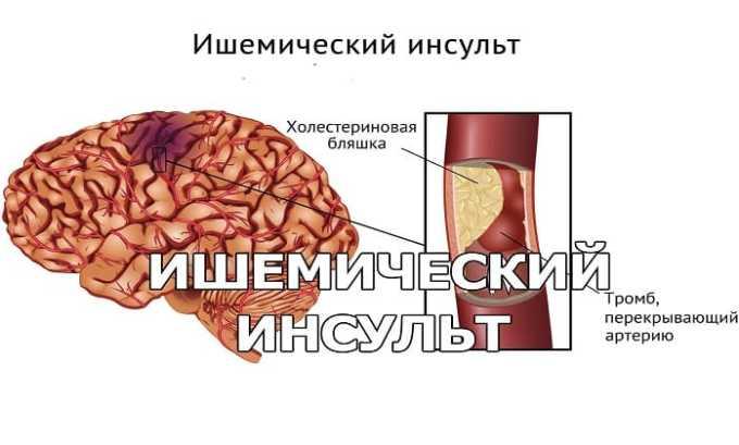 Препарат могут принимать люди, перенесшие ишемический инсульт