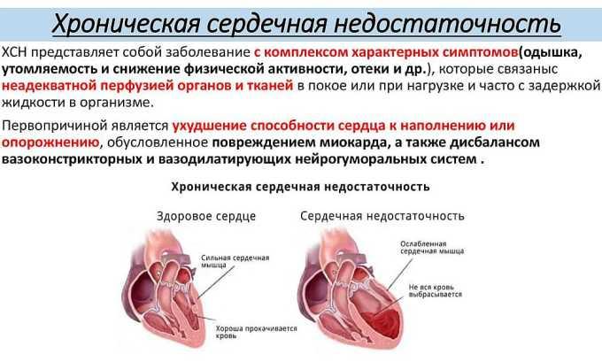 Препарат назначается при хронической сердечной недостаточности