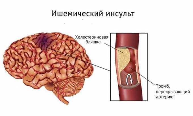 При ишемическом инсульте достаточно часто назначается Глицин