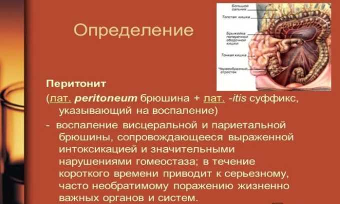 Препарат назначают при перитоните
