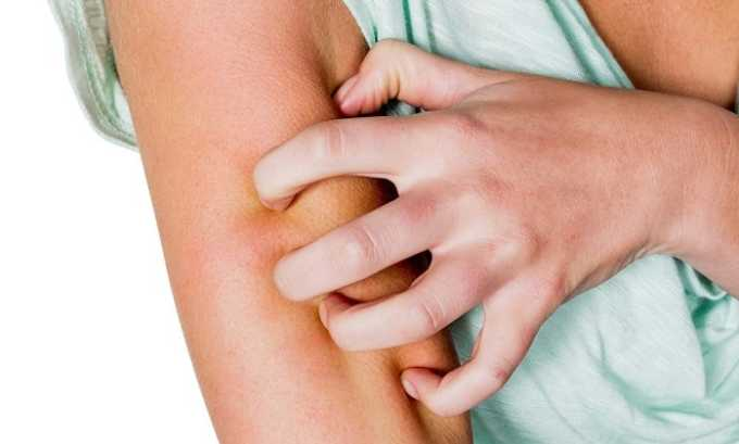 ЛС нельзя использовать для лечения пациентов, страдающих от аллергии