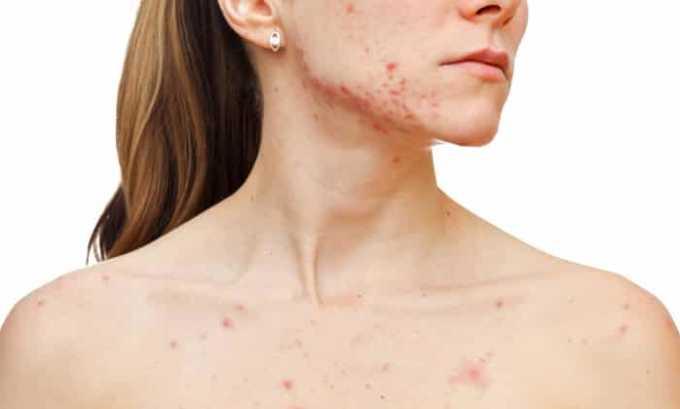 Прием Гидрокортизона в таблетках или инъекциях может вызвать множество побочных реакций организма, среди которых акне